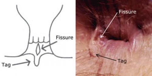 Хроническое задняя анальная трещина
