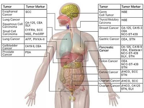 онкомаркеры после химиотерапии снова растут что делать Лечение