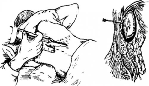 Блокада при восполеннии анальных желез
