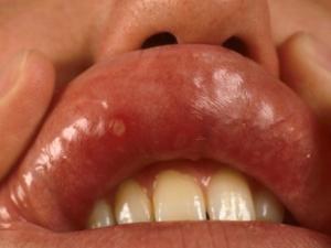 паразиты полости рта у человека