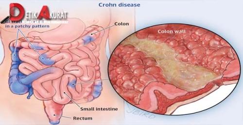 паразиты в пищеводе человека убрать